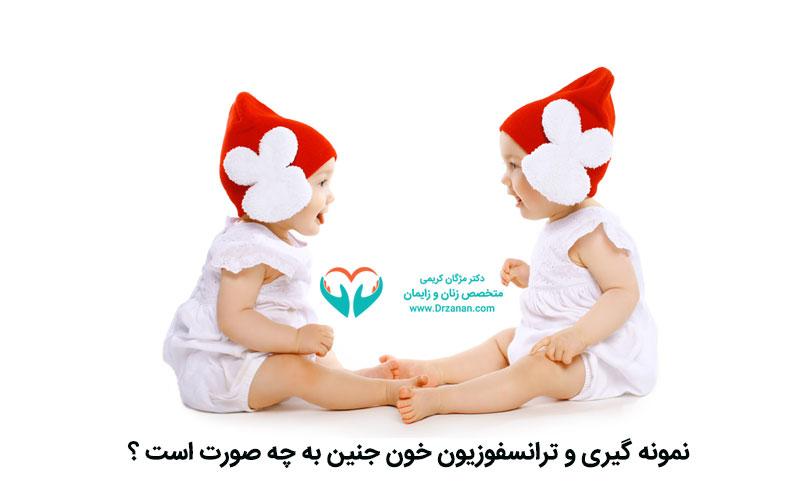 نمونه گیری و ترانسفوزیون خون جنین به چه صورت است ؟