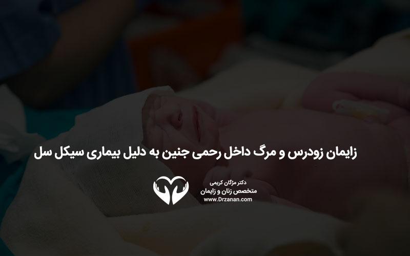 زایمان زودرس و مرگ داخل رحمی جنین به دلیل بیماری سیکل سل
