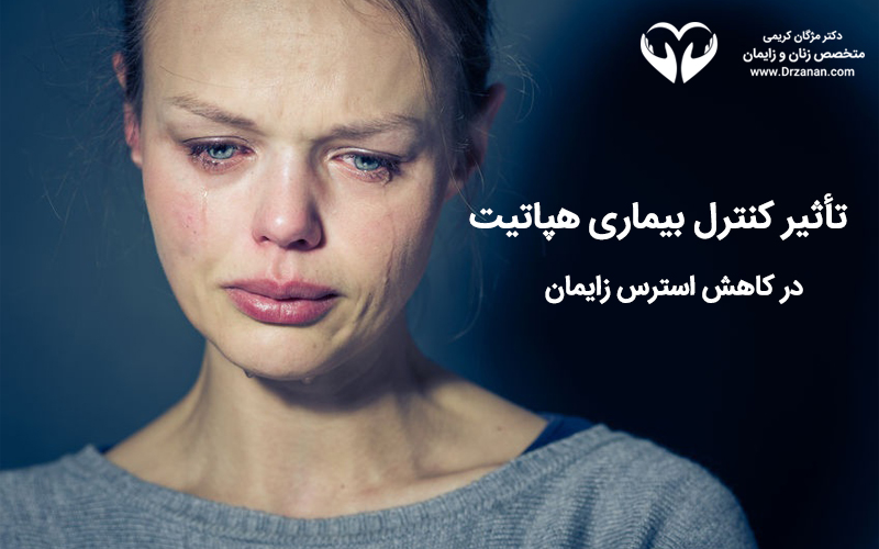 تأثیر کنترل بیماری هپاتیت در کاهش استرس زایمان